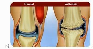 a csípőízület zömök artrózisa