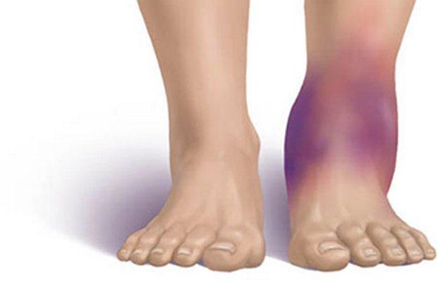 a térdízületek fájdalmának oka éjjel arthrosis 1 2 fokos kezelés