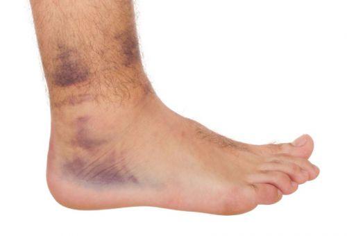 térdízületi gyulladás kezelése kondroitinnal az ujjízület fájdalma a karon