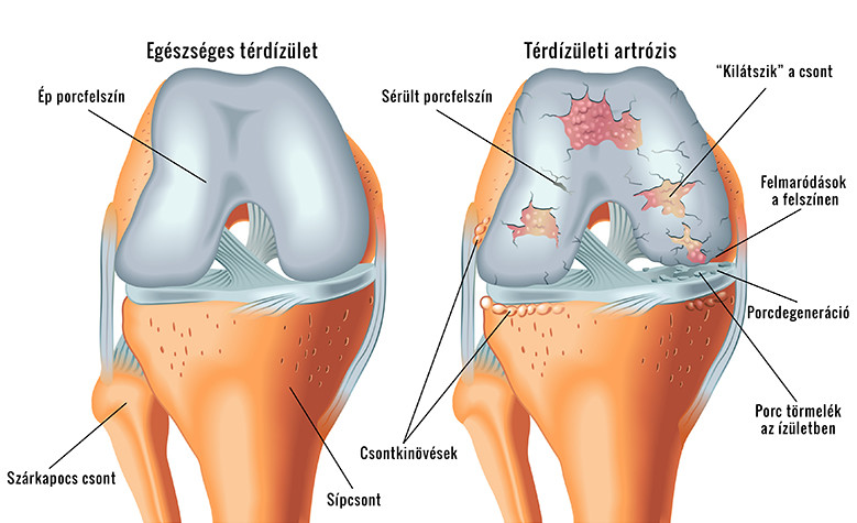 Porc felpuhulás (condropathia) – a térd mozgásszervi panaszai