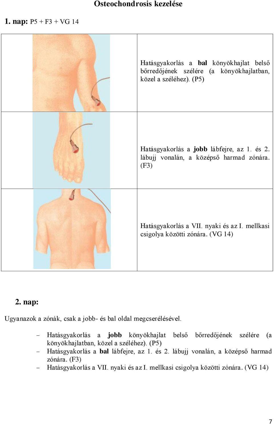 térdízület keverés poszttraumás térd osteoarthritis 3 fok