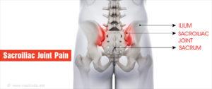 sacroiliac ízületek fájdalma