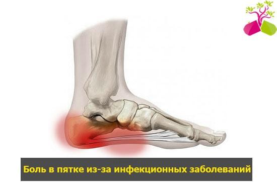 szóda a lábak ízületeinek fájdalmához mi okozza az ízületi fájdalmat