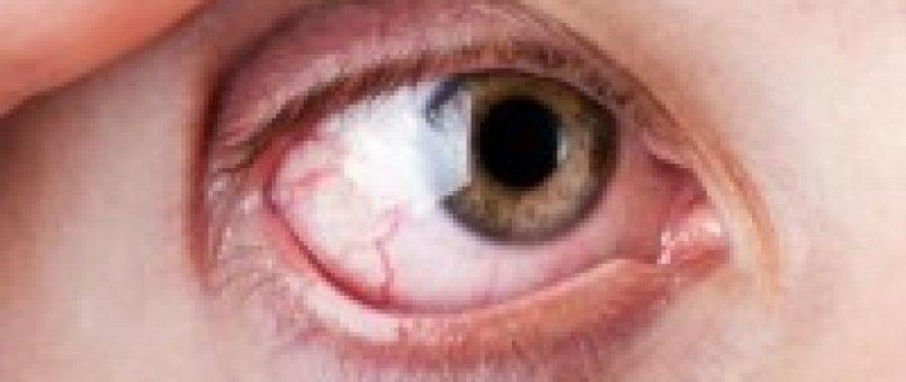 száraz szem izületi fájdalom