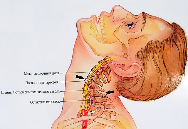 teraflex ízületi sérülések esetén betegségek ízületek okozza