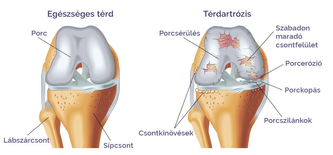 a seros ízület gyulladása a csípőízület artrosisának kialakulása