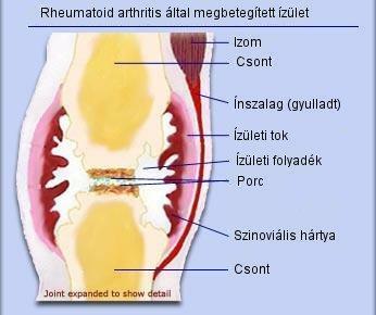 hosszan járó fájdalom a csípőízületben súlyosbodása artrózis a térd mit kell tenni