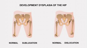 Hip dysplasia - Hörghurut July