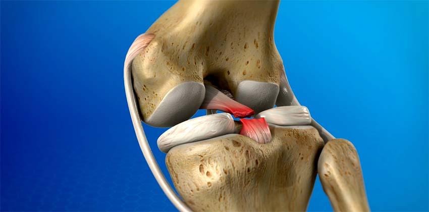 térd ínszalagok javulása sprain után