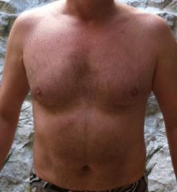 térdízületi csapkodás tünetei ízületi fájdalomcsillapító zselatin