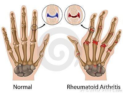 ujjak ízületi gyulladása a gurchenkonál