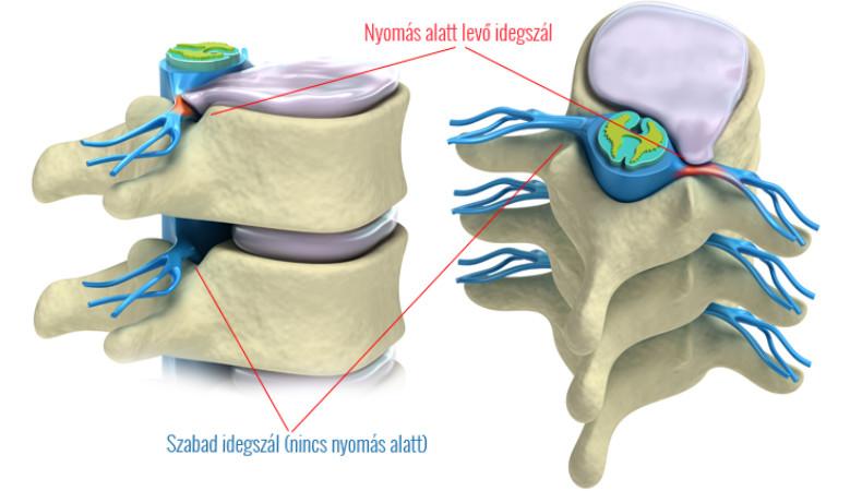 Friedreich ataxia: Tünetek, diagnózis és kezelés