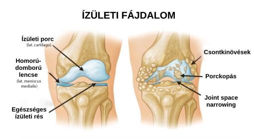 a szubtalaris ízületi kezelés artrózisa izületi porckopás ellen