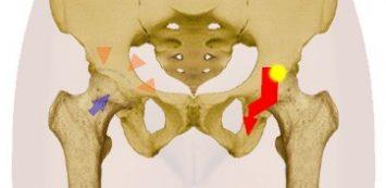 Fáj a belső combja? Íme, a lehetséges okok!