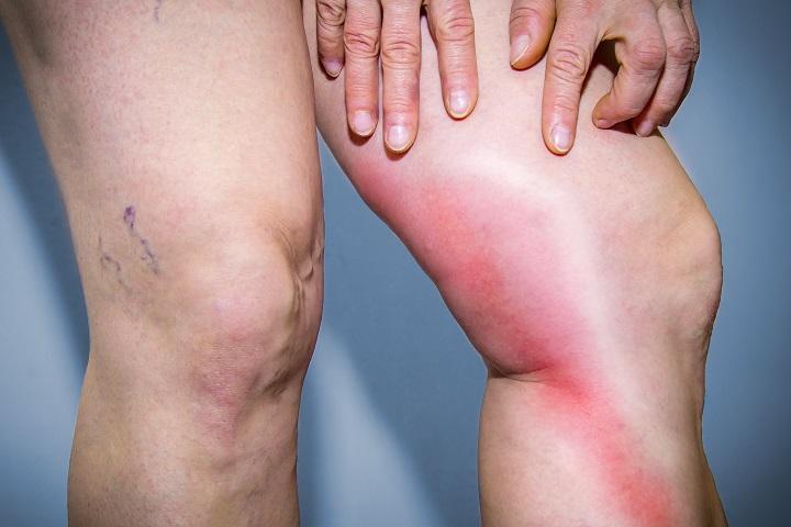 ízületi és vénás fájdalmak ízületi fájdalom és ropogás