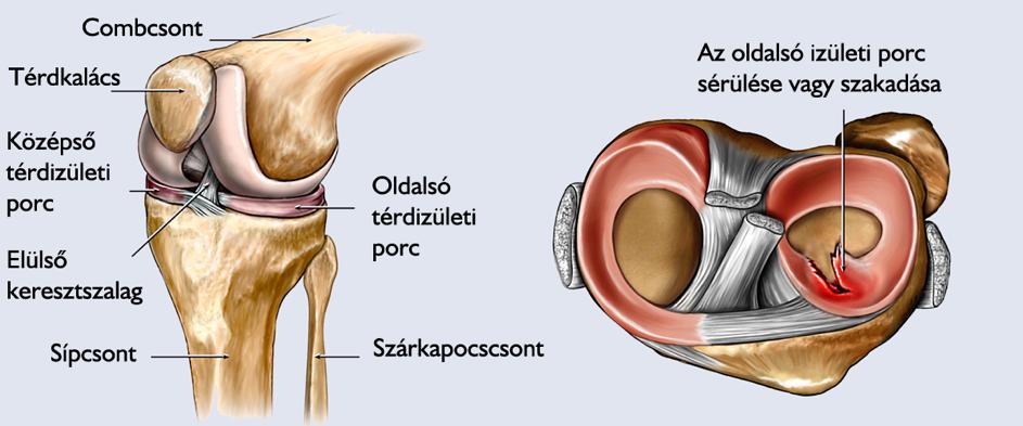 a térdízület belső oldalsó ínszalagjának szakadása