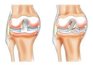 hogyan lehet felgyorsítani a térdízület ligamentumainak helyreállítását