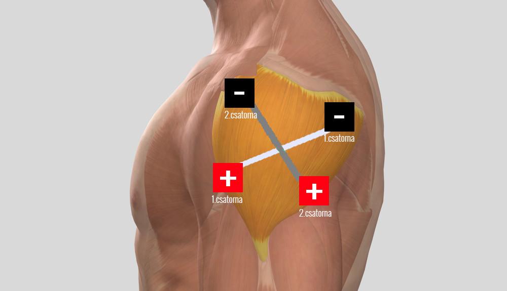 az alsó végtagok ízületeinek osteochondrosis miért fáj az izületek