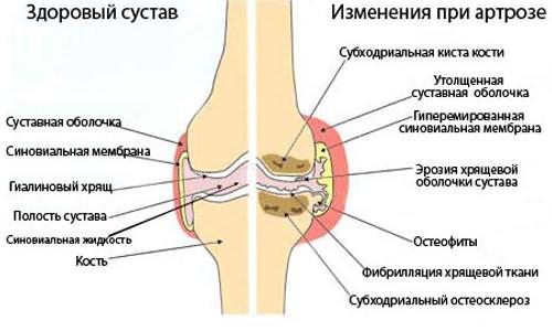 artrózis boka kezelő tabletták gyógyszerek a csípőízület artrózisának kezelésére
