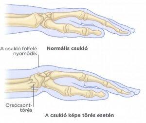 csattanás és ujjfájdalom a kéz ízületeiben