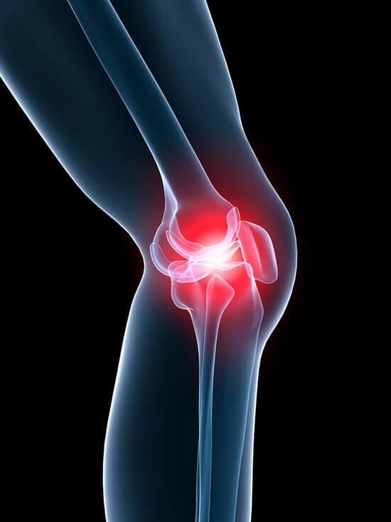 Mitől fájhat a térded? Sérülések, betegségek, megelőzés