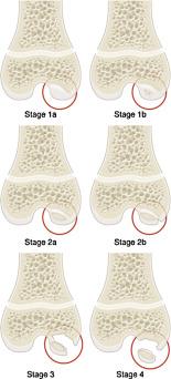 osteochondritis dissecans stages fájdalom és a kézízületek deformációja