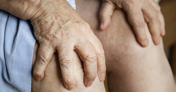 Reuma vagy köszvény? Mi a különbség?