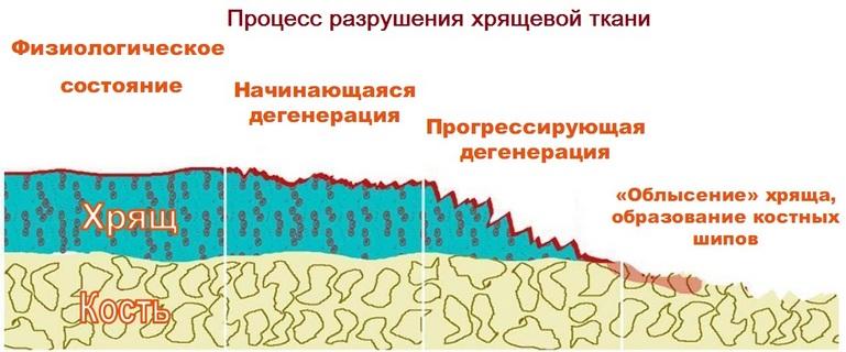 fájdalomcsillapító kenőcsök ízületi gyulladásokhoz hogyan kezeljük a vállízület osteochondrozist