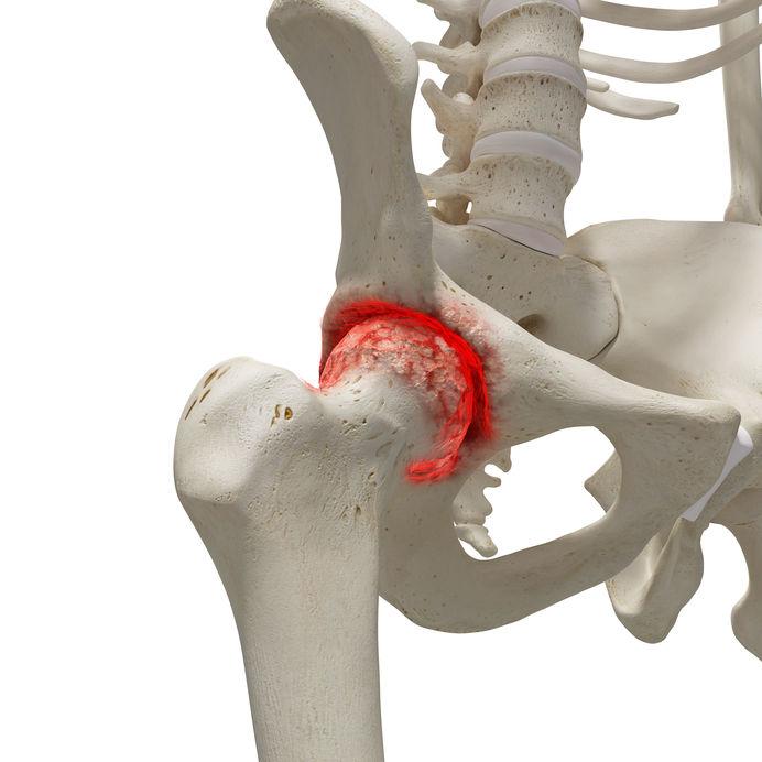 SpineArt - Csipőfájdalom Kezelése | Csipő Torna | smarthabits.hu