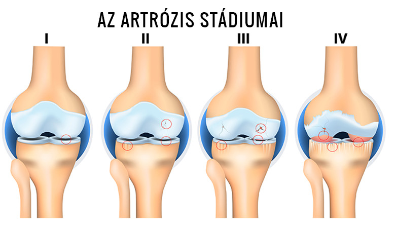 artrózis térdízület kezelési fóruma térd bursitis