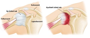 vállbetegség okai fájó fájdalom az ízületekben és a lábakban