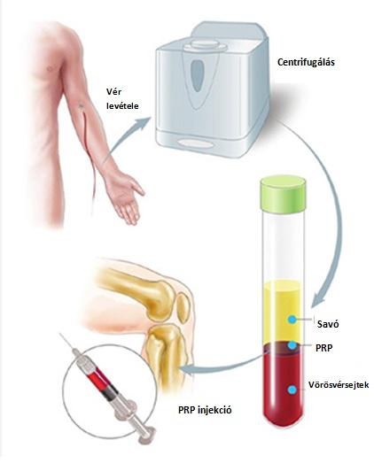 ízületi ízületi injekciók kezelése