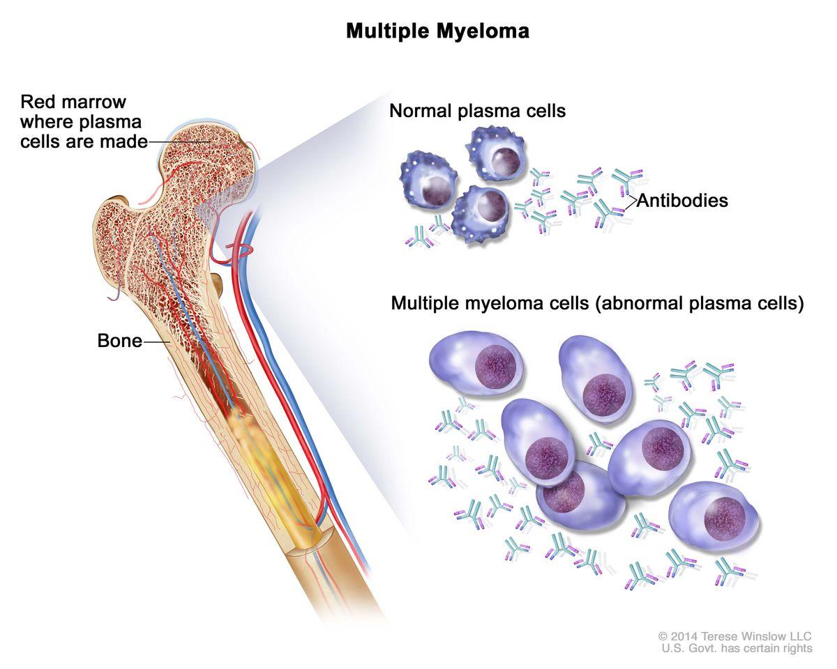 milyen gyógyszerek a vállízület ízületi gyulladásai boka kezelési ödéma