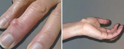 a csípőízületi gyulladás kezelésének szabványai térd meniszkusz degeneráció kezelése