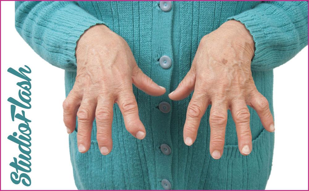 artrózis sertések kezelésében artrosis és artritisz kezelése