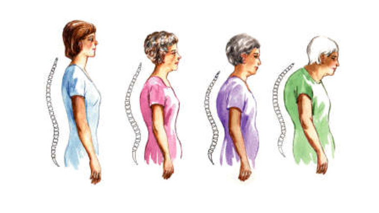 vállfájdalom tünetei és kezelése jobb váll és nyak fájdalom