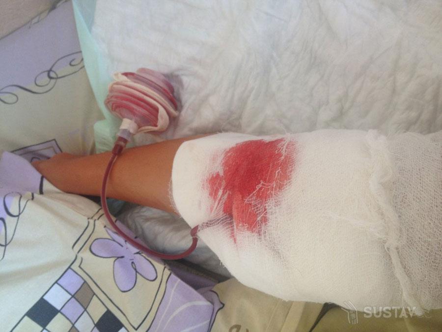 Kenőcs vietnam ízületi fájdalmak kezelésére - Kenőcs ízületek Vietnam