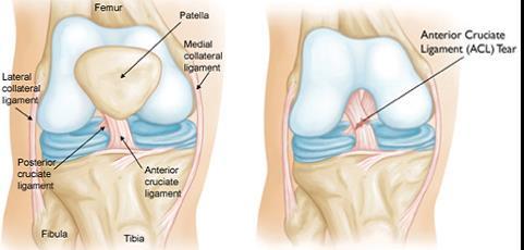 urinoterápiás ízületi kezelés fájdalomcsillapító csont- és ízületi fájdalmakhoz