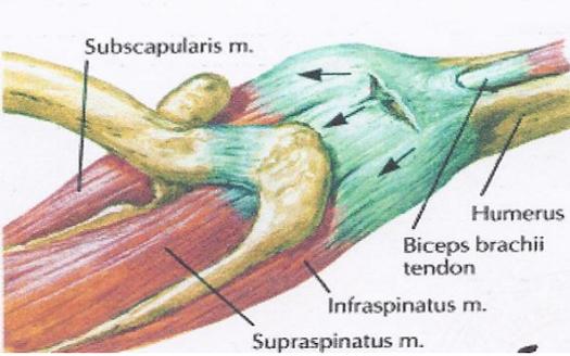 könyökízület artrózisával