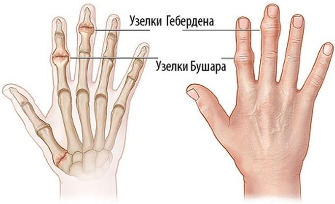 ízületi fájdalom és a lábak duzzanata csípő izületi fájdalmak