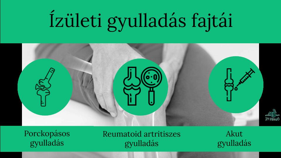 ahol az ízületi gyulladást kezelik, tanácsos az ízületi gyógyszerből