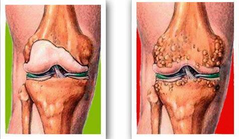 Az egyetlen komplex terápiás kezelés, amely segít meggyógyítani a térd arthrosist