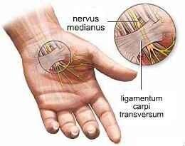 csukló ligamentum betegségek közös jogorvoslatok