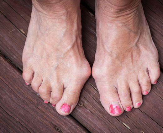 Lábfájás: komoly baj vagy csak kényelmetlen cipő?