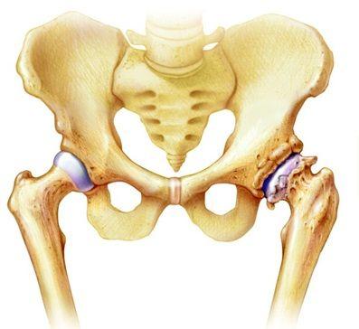 csípőízületi izületi gyulladás belorechenszki közös kezelés