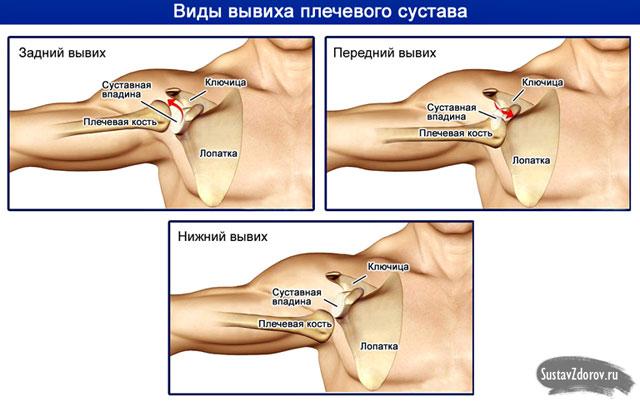 arthrosis a vállízület 3 fokos kezelése kenőcsök vállízületekhez