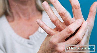 Bütykös ujj? A Heberden-szindróma fájdalma kezelhető!