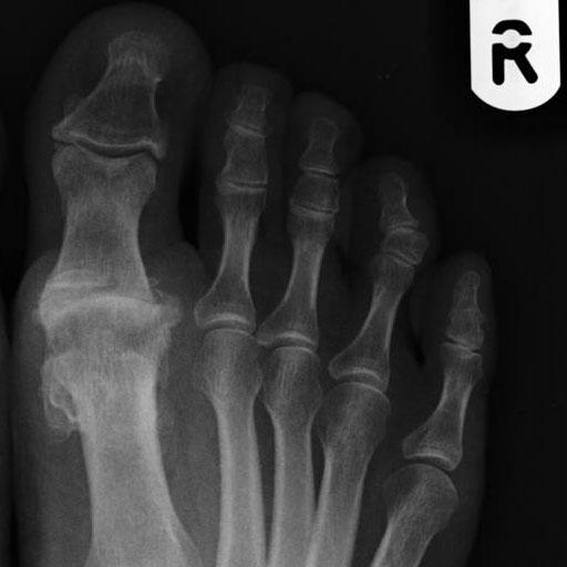 hogyan lehet kezelni az ízület ujját
