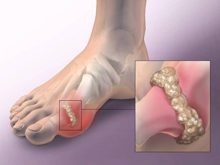 vállfájdalom tünetei és kezelése térdízületi kezelés meniszkuszának degeneratív törése