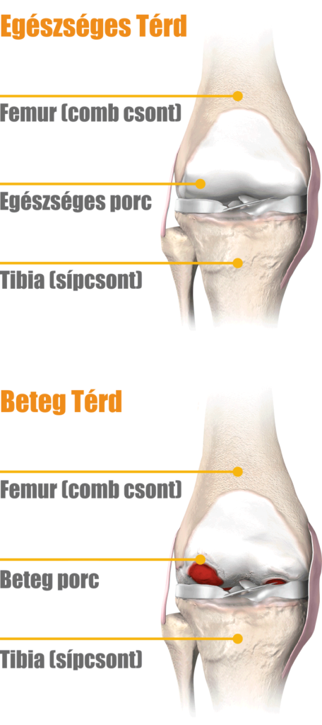 fájdalom a csípő és a medence ízületében közös kezelés pizzában